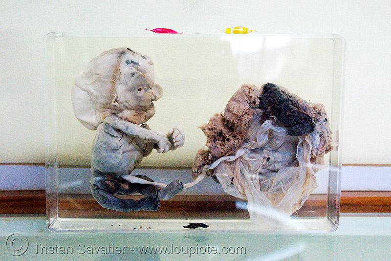 damaged and partly decomposed fetus, preserved - ศพเด็ก - forensic medicine museum, โรงพยาบาลศิริราช - siriraj hospital, bangkok (thailand), anatomy, cadaver, corpse, dead baby, dead fetus, death, grisly, gruesome, human remains, macabre, morbid, placenta, womb, บางกอก, ประเทศไทย