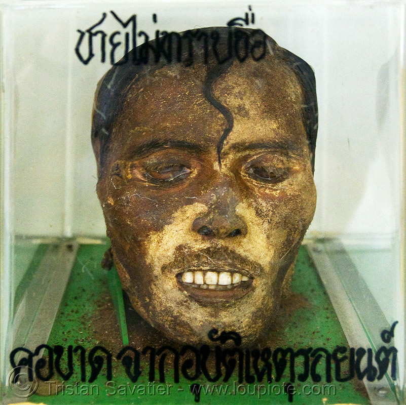mummified head of unidentified male beheaded in car accident - forensic medicine museum, โรงพยาบาลศิริราช - siriraj hospital, bangkok (thailand), anatomy, bangkok, beheaded, body part, cadaver, corpse, dead, death, decapitated, forensic medicine museum, grisly, gruesome, human head, human remains, macabre, morbid, mummified, real severed head, siriraj hospital, บางกอก, ประเทศไทย, โรงพยาบาลศิริราช