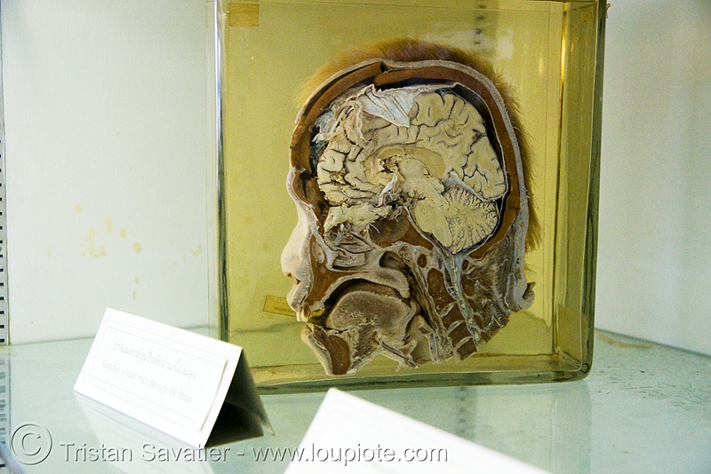 section of human head, preserved - forensic medicine museum, โรงพยาบาลศิริราช - siriraj hospital, bangkok (thailand), anatomy, beheaded, brain, cadaver, corpse, dead, death, decapitated, grisly, gruesome, human remains, macabre, morbid, real severed head, specimen, บางกอก, ประเทศไทย, โรงพยาบาลศิริราช