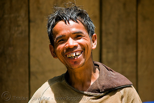 bad teeth, good smile - villager (laos), bad teeth, decayed teeth, guy, laos, man