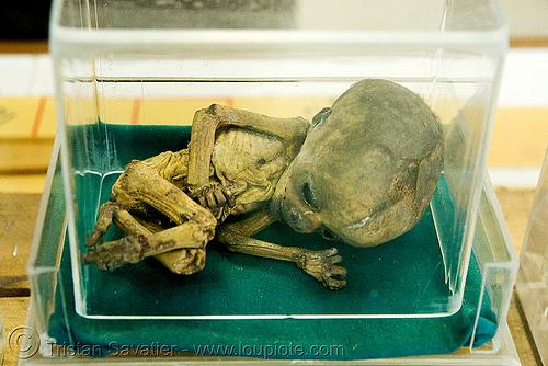 dead fetus, mummified - ศพเด็ก - forensic medicine museum, โรงพยาบาลศิริราช - siriraj hospital, bangkok (thailand), anatomy, bangkok, cadaver, corpse, dead baby, dead fetus, death, forensic medicine museum, grisly, gruesome, human remains, macabre, morbid, mummified, siriraj hospital, บางกอก, ประเทศไทย, ศพเด็ก, โรงพยาบาลศิริราช