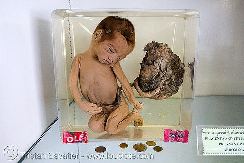 dead human fetus, preserved - ศพเด็ก - forensic medicine museum, โรงพยาบาลศิริราช - siriraj hospital, bangkok (thailand), anatomy, bangkok, cadaver, corpse, dead baby, dead fetus, death, forensic medicine museum, grisly, gruesome, human remains, macabre, morbid, placenta, siriraj hospital, womb, บางกอก, ประเทศไทย, ศพเด็ก, โรงพยาบาลศิริราช