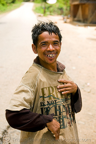 guy with bad teeth in village (laos), bad teeth, decayed teeth, guy, laos, man