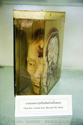 half human head, preserved - forensic medicine museum, โรงพยาบาลศิริราช - siriraj hospital, bangkok (thailand), anatomy, beheaded, brain, cadaver, corpse, dead, death, decapitated, grisly, gruesome, human remains, macabre, morbid, real severed head, section, specimen, บางกอก, ประเทศไทย, โรงพยาบาลศิริราช