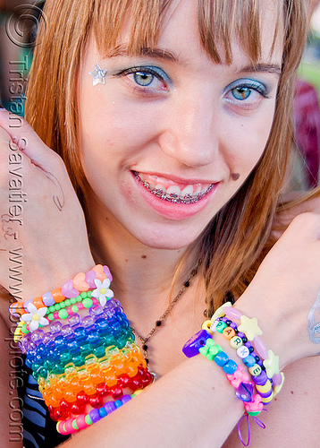 kandi kid - samone (san francisco), beads, clothing, cuff, dental braces, fashion, kandi kid, kandi raver, orthodontic braces, samone, sparkle, teeth, woman