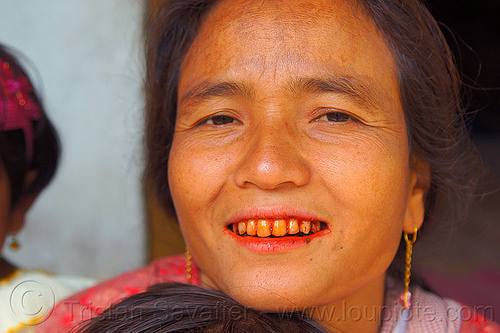 khasi woman chewing betel nut (india), areca nut, betel leaf, betel nut, betel quids, betelnut teeth, east khasi hills, india, indigenous, mawlynnong, meghalaya, woman