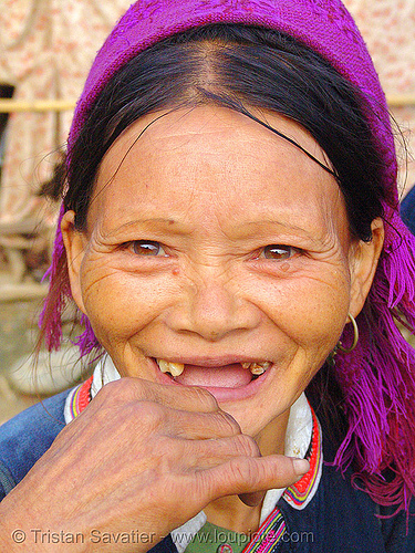 """kim mun lantien sha"" dao/yao tribe woman missing a few teeth - vietnam, asian woman, bảo lạc, dao, dzao tribe, hill tribes, indigenous, kim mun lantien sha, old, teeth, vietnam, yao tribe"