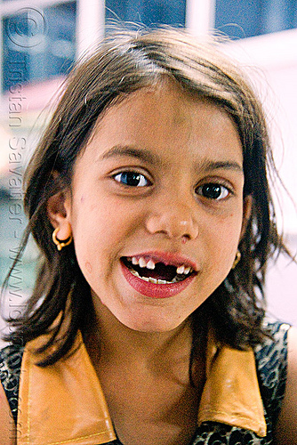 little girl with missing teeth - udaipur (india), baby teeth, child, india, kid, little girl, missing teeth, udaipur