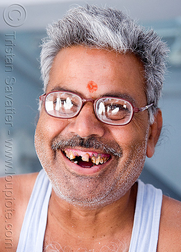 man with bad teeth smile (india), bad teeth, decayed teeth, eyeglasses, eyewear, india, jaipur, man, mustache, prescription glasses, spectacles