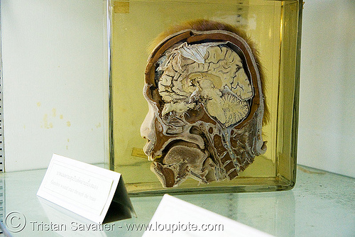 section of human head, preserved - forensic medicine museum, โรงพยาบาลศิริราช - siriraj hospital, bangkok (thailand), anatomy, bangkok, beheaded, brain, cadaver, corpse, dead, death, decapitated, forensic medicine museum, grisly, gruesome, human head, human remains, macabre, morbid, preserved, real severed head, section, siriraj hospital, specimen, บางกอก, ประเทศไทย, โรงพยาบาลศิริราช