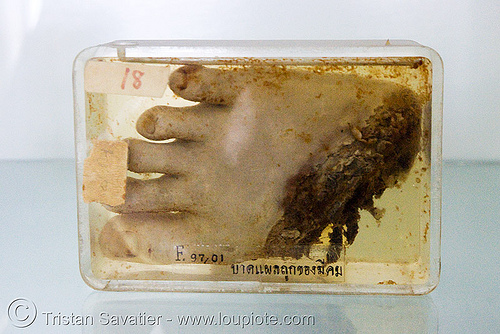 severed foot, preserved - forensic medicine museum, โรงพยาบาลศิริราช - siriraj hospital, bangkok (thailand), anatomy, bangkok, body part, cadaver, corpse, dead, death, forensic medicine museum, human remains, severed foot, siriraj hospital, specimen, thailand, toes, บางกอก, โรงพยาบาลศิริราช